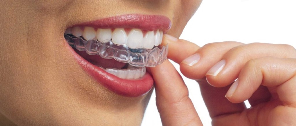 Close up shot of woman putting in Invisalign clear aligners