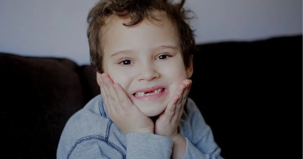 Young boy with hands on cheek showing missing baby teeth