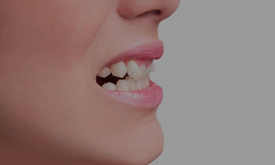 Myths-About-Fixing-Crooked-Teeth