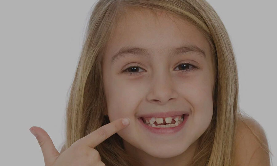 Girl-With-Crooked-Teeth-Fast-Treatment
